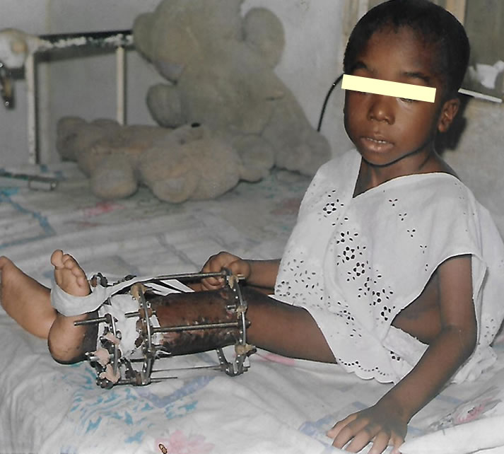 The Challenge of Orthopedic and Trauma Practice in Nigeria - Hopeville Specialist Hospital