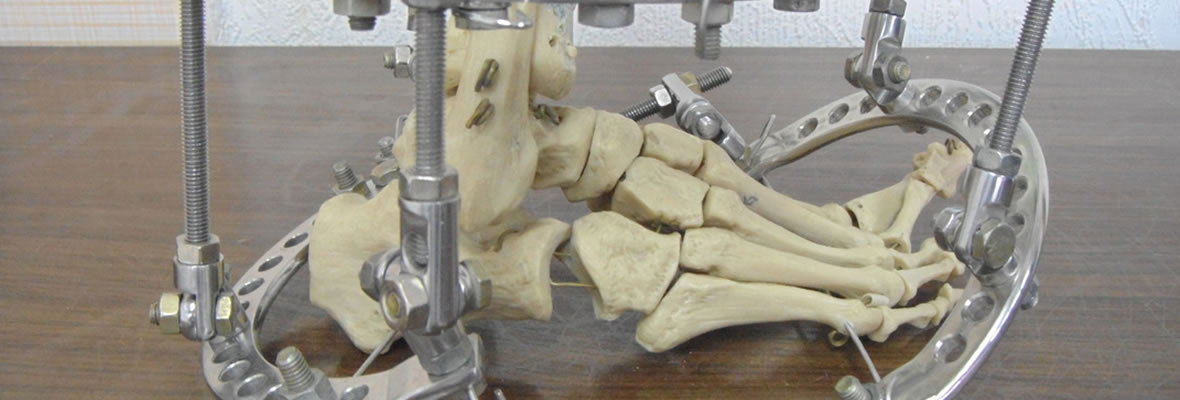 Correcting Complex Foot and Ankle Deformities - Hopevile Specialist Hospital
