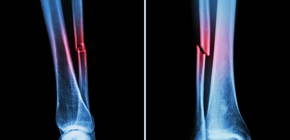 Treatment of Fractures and Fracture Complications