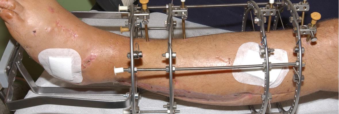 Limb Reconstruction using Ilizarov Technology - Hopeville Specialist Hospital