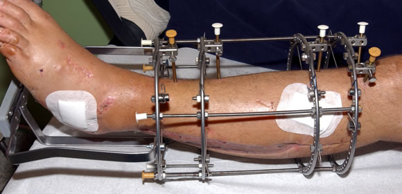 Limb Reconstruction using Ilizarov Technology