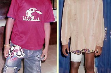 Correcting Limb Deformities - Hopeville Specialist Hospital