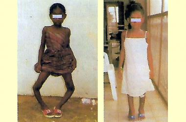Correction of Bow Legs in Children (Blount Disease) - Hopeville Specialist Hospital